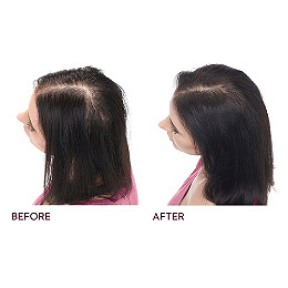 The Complete Hair Regrowth System For Deep Hydration