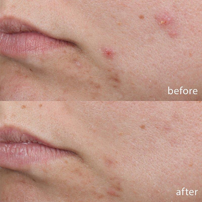 dermalogica acne spot treatment
