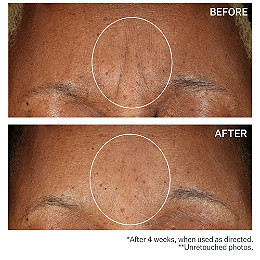 Sd Advanced Plus Intensive Moisturizing Concentrate For Wrinkles Stretch Marks